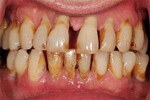 advanced-periodontal-disease