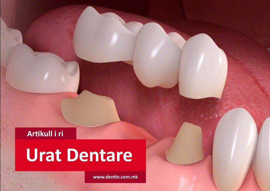 dental-bridges-in-cotswolds-gloucestershire
