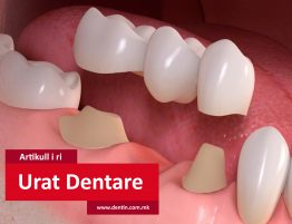 dental-bridges-in-cotswolds-gloucestershire